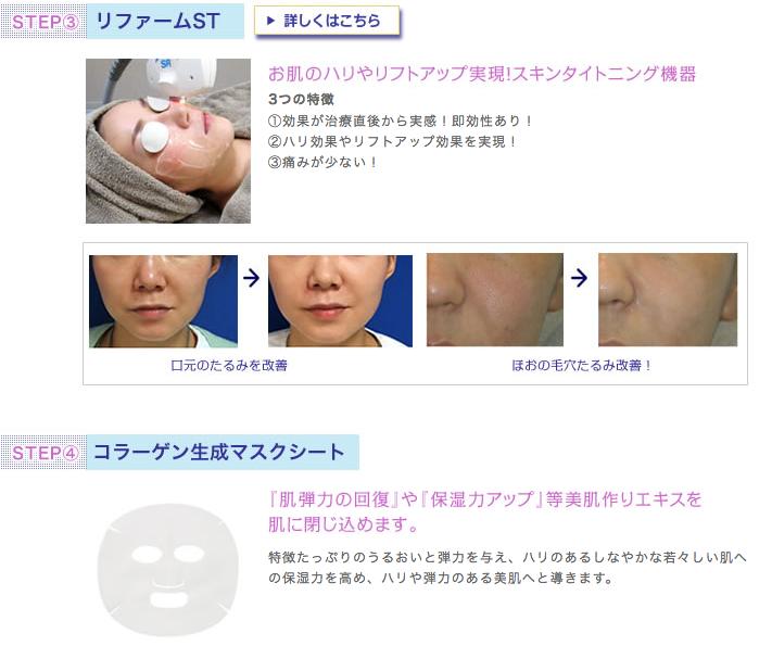 リファームST・コラーゲン生成マスク